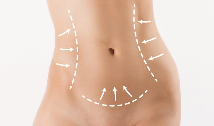 Cosmetic Procedures Tummy Tuck