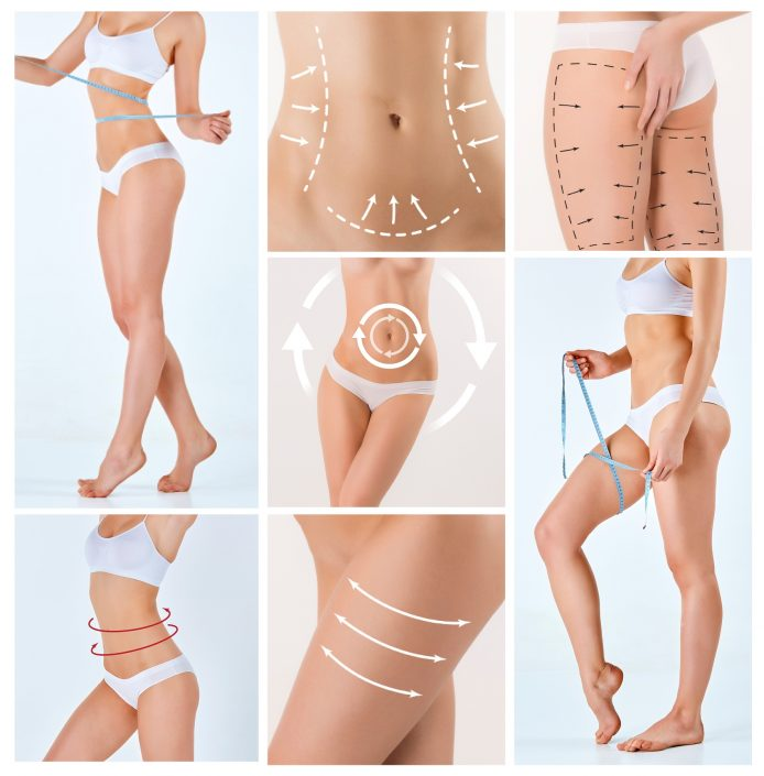 Mommy Makeover Cosmetic Surgeries